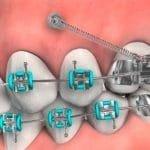 Mini Implante Ortodôntico